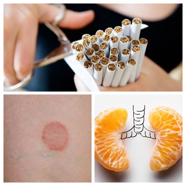 Lobelia para dejar de fumar